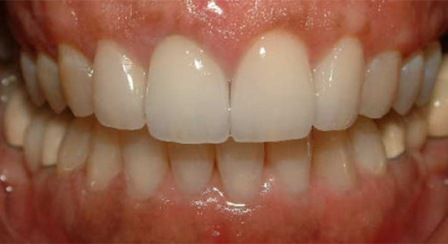 dental veneers and crowns lab toronto after photo