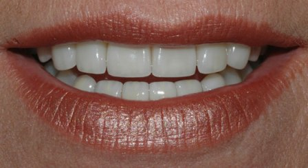 creation feldspathic veneers and empress 1 layered veneers toronto dental laboratory after example