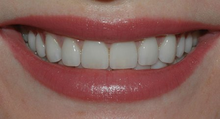 20 teeth empress 1 layered veneers example from toronto dental lab second nature dental innovations
