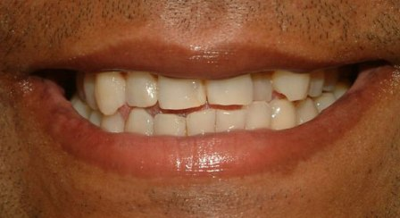 dental veneers case example before and after