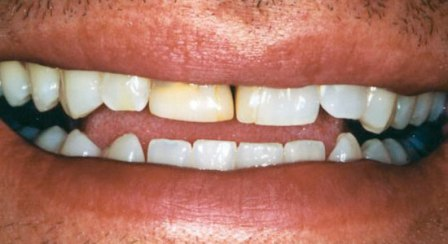 dental case example before photo veneers