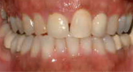 before dental veneers and crowns photo