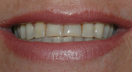 before dental case example creation feldspathic veneers and empress veneers